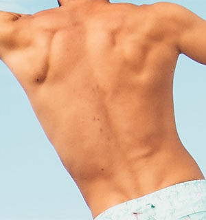 Picture of a mans back muscles
